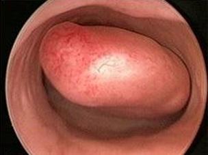 Какие бывают боли при наличии эндометриоза